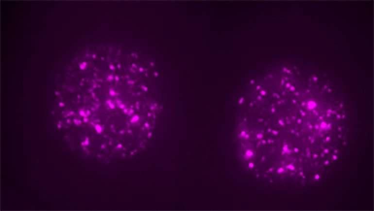 L1 Zıplayan Geninin Embriyo Gelişimi İçin Gerekli Olduğu Keşfedildi