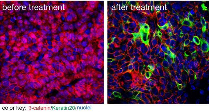 Hacking the programs of cancer stem cells