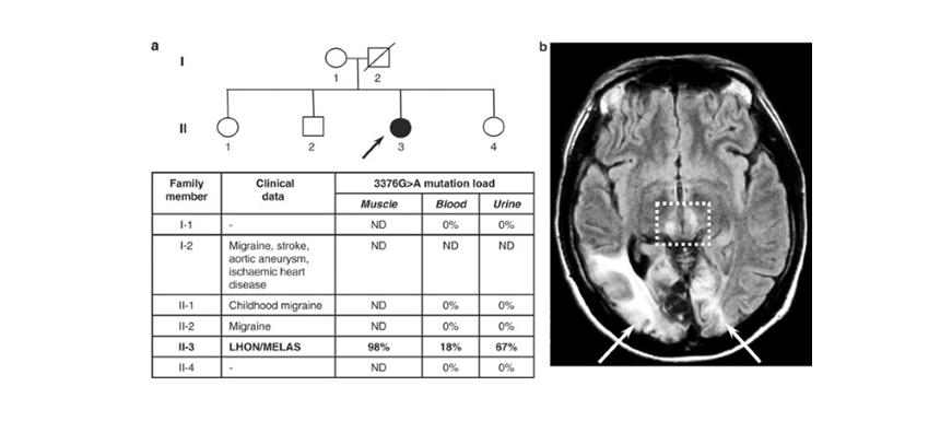 Mitokondrial MTND1 Gen Mutasyonu İle İlişkili Lohn/Melas Örtüşme Sendromu