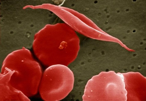 CRISPR gene editing reveals new therapeutic approach for blood disorders