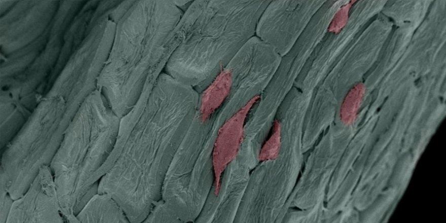 Bazı bitkiler, insan kök hücre iskelet (şablon ) yapılarına form kazandırıyor