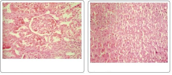 Endosülfan ve okratoksin-A'nın birlikte sıçanlarda toksisitesi: histopatolojik değişiklikleri