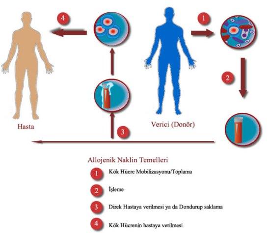 Allogenik Kök Hücre Nakli