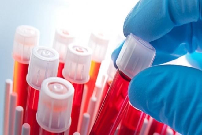 Hemogram (Tam Kan Sayımı)