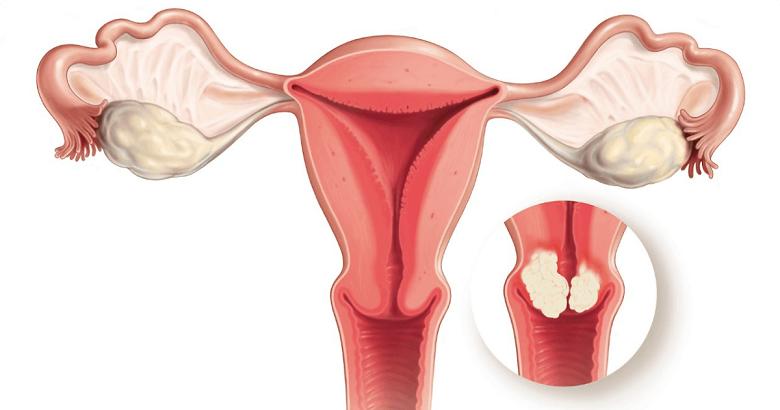 Rahim ağzı kanserine karşı koruyucu 7 öneri ile ilgili görsel sonucu