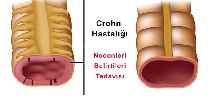 Crohn Hastalığı nedir? Neden olur? Belirtileri ve tedavisi