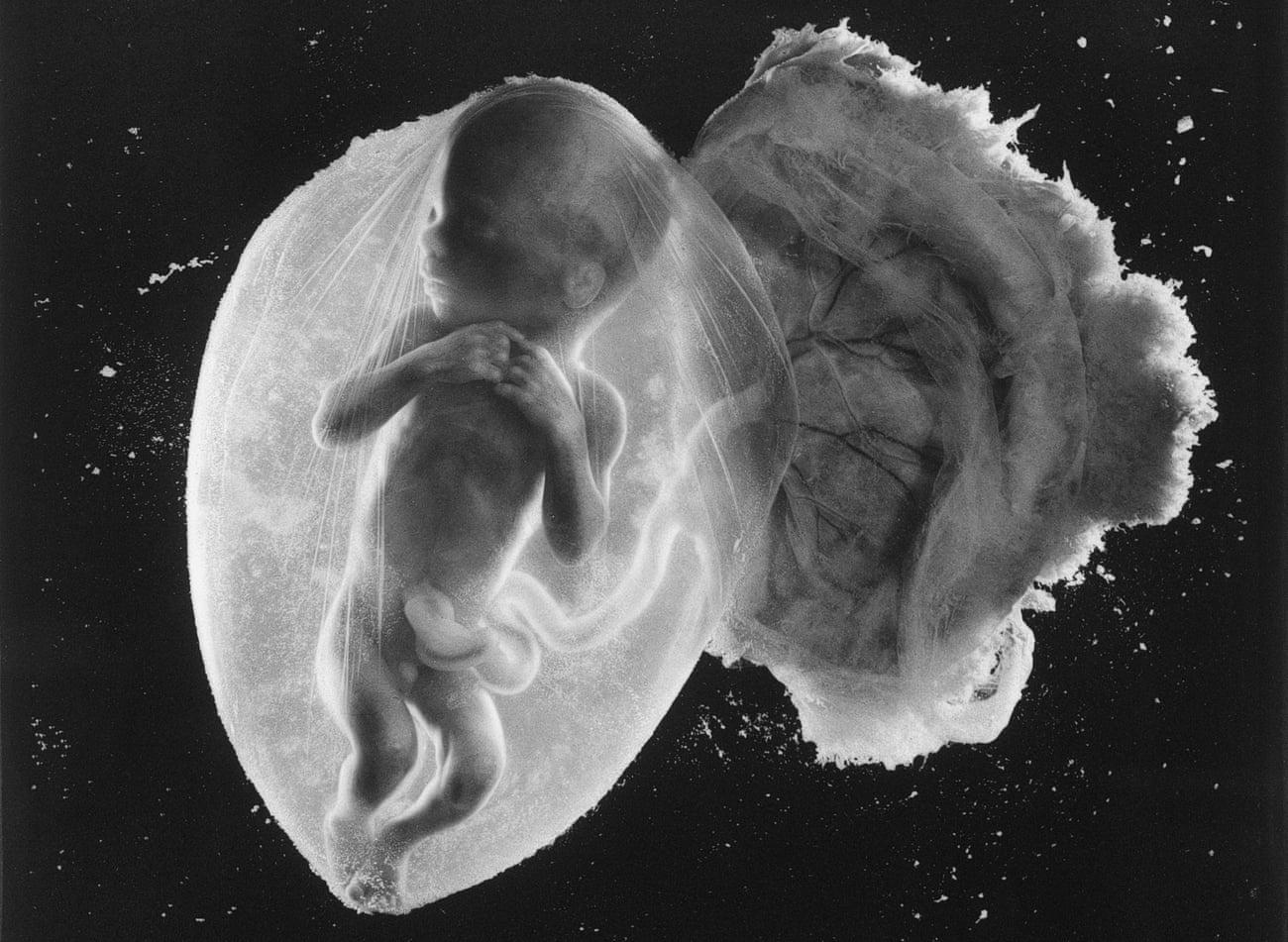 Doğum öncesi yolculuk... 18 haftalık fetüs, Fotoğraf: Lennart Nilsson