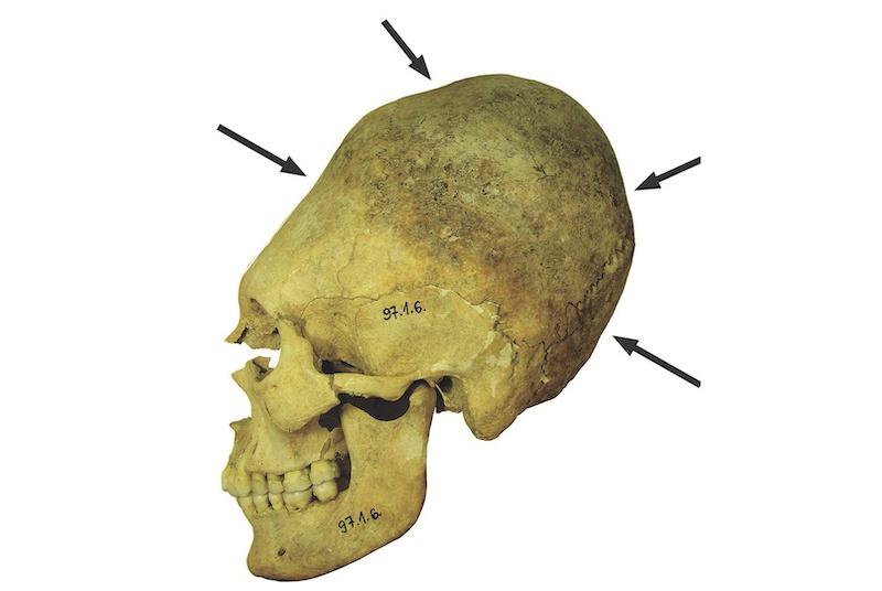 Yetişkin bir kadının yapay olarak deforme olmuş kafatası. Çocukluk döneminde kafatasının bağlanması, kafatasının uzamasına ve kemikteki çöküntülere neden oluyor. C: Balázs G. Mende.