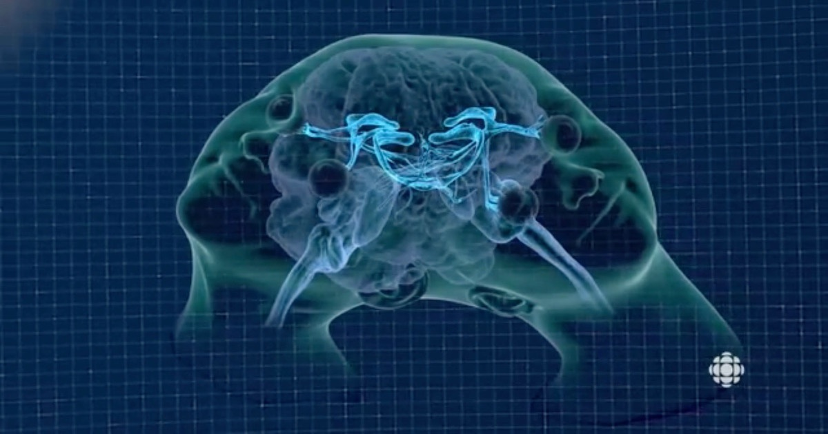 """Image: Screengrab from """"Twin Life: Sharing Mind and Body,"""" via CBC TV/YouTube."""