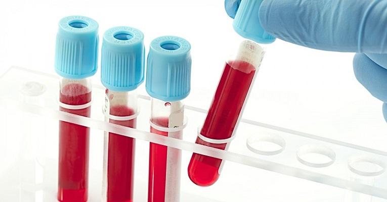 Bu yeni kan testi ile ölümcül deri kanseri biopsiden daha kolay bir şekilde saptanıyor ..