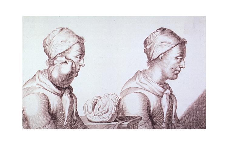 Kanserin Tarihi