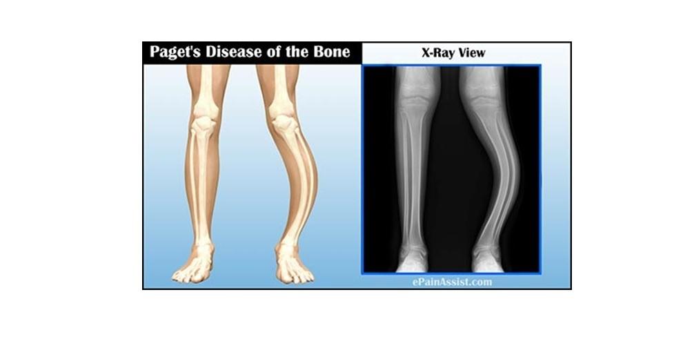 Kemik Paget Hastalığı