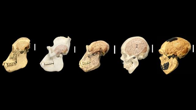 İnsan-Spesifik Genleri Beyin Boyutunu Belirliyor.