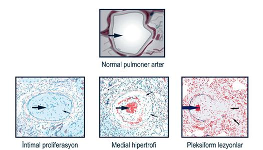 PAH - Pulmoner arteriyel hipertansiyon