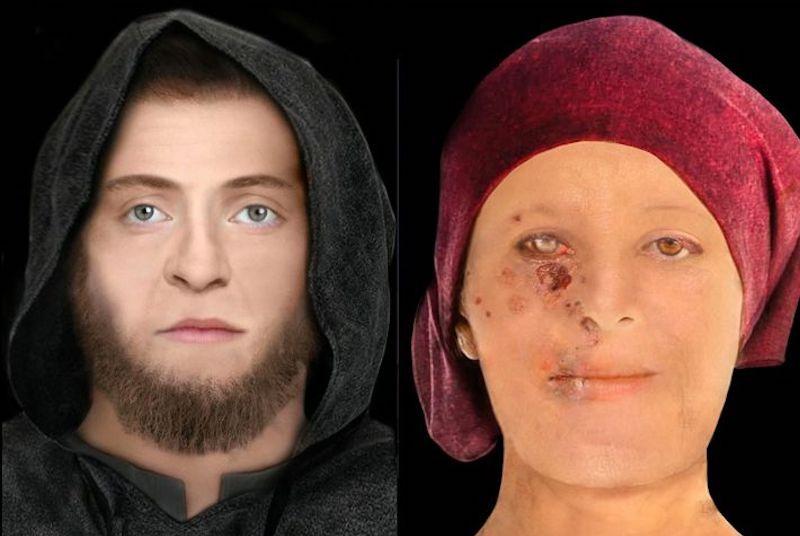 Yüksek statüdeki 16. yüzyılda yaşamış olan kadının cildinde, dokularında ve kemiğinde iz bırakan cüzzamdan muzdarip olduğu görülüyor. C: Lucrezia Rodella ve Karen Fleming