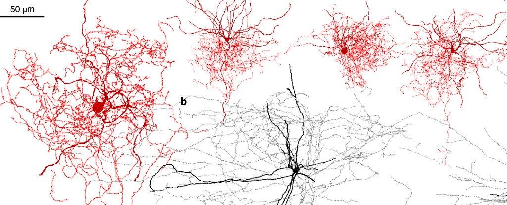 İnsan Beynine Özgü Yeni Sinir Hücresi Keşfedildi: Kuşburnu Nöronları