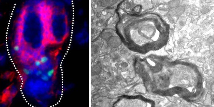 Telogen Kök Hücreleri Hasarlı Nöronları Onarabiliyor