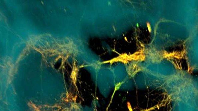 3D yapay beyin dokusu