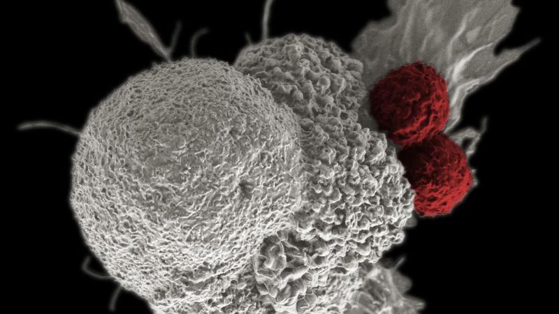 Bakterilerle Kanser Tedavisi